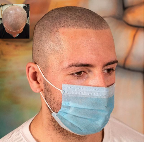What Can You Do About Hair Transplant Scarring?